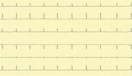 ЭКГ (электрокардиограмма) – зачем это нужно?