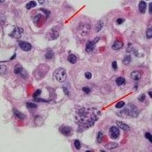Токсоплазмоз: коротко о заболевании